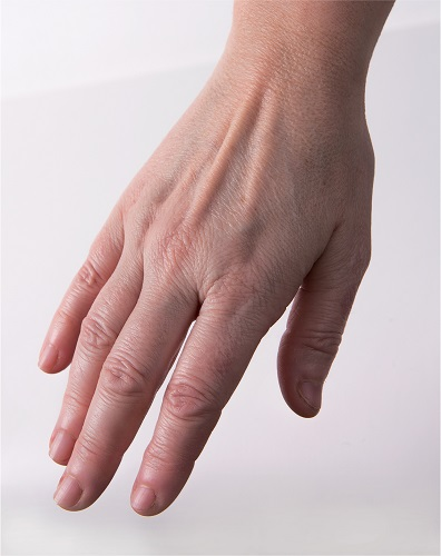 Viscoderm Hands - After